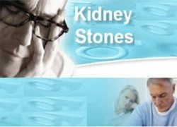 51 Tips for Dealing with Kidney Stones 4
